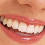 L'ossessione per i denti bianchi: e la salute?